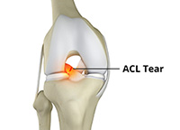 Anterior Cruciate Ligament Tears