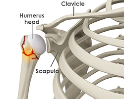 What is a Shoulder Fracture?